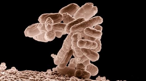 bakterie e-coli